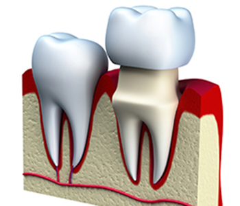 Dental Care & Wellness of Sonoma County Brampton, ON area dentist describes the purpose of dental crowns