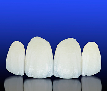Brampton offers porcelain veneers