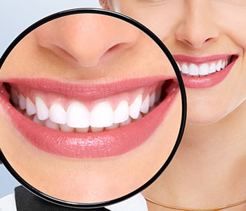 Teeth Whitening in Brampton
