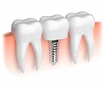 Dr. Joshi and his team's dental implants procedure to rebuild teeth in Brampton