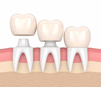 Dental crowns treatment in Brampton - Full crowns fit over the entire tooth